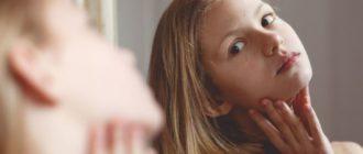 как ухаживать за подростковой кожей лица