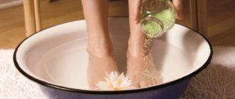 как справиться с натоптышами на ногах